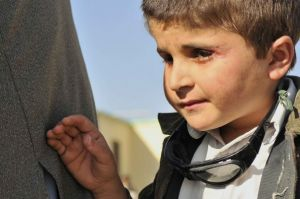 A young boy who lost his eyesight due to an explos